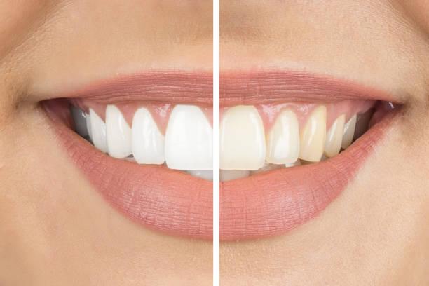 Comment blanchir les dents? Les meilleurs remèdes maison